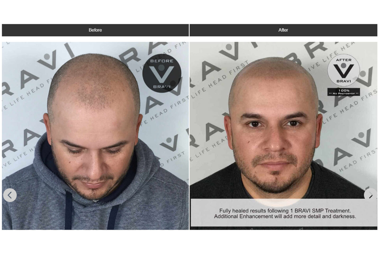 3 Ways Scalp MicroPigmentation Can Help You With Hair Loss