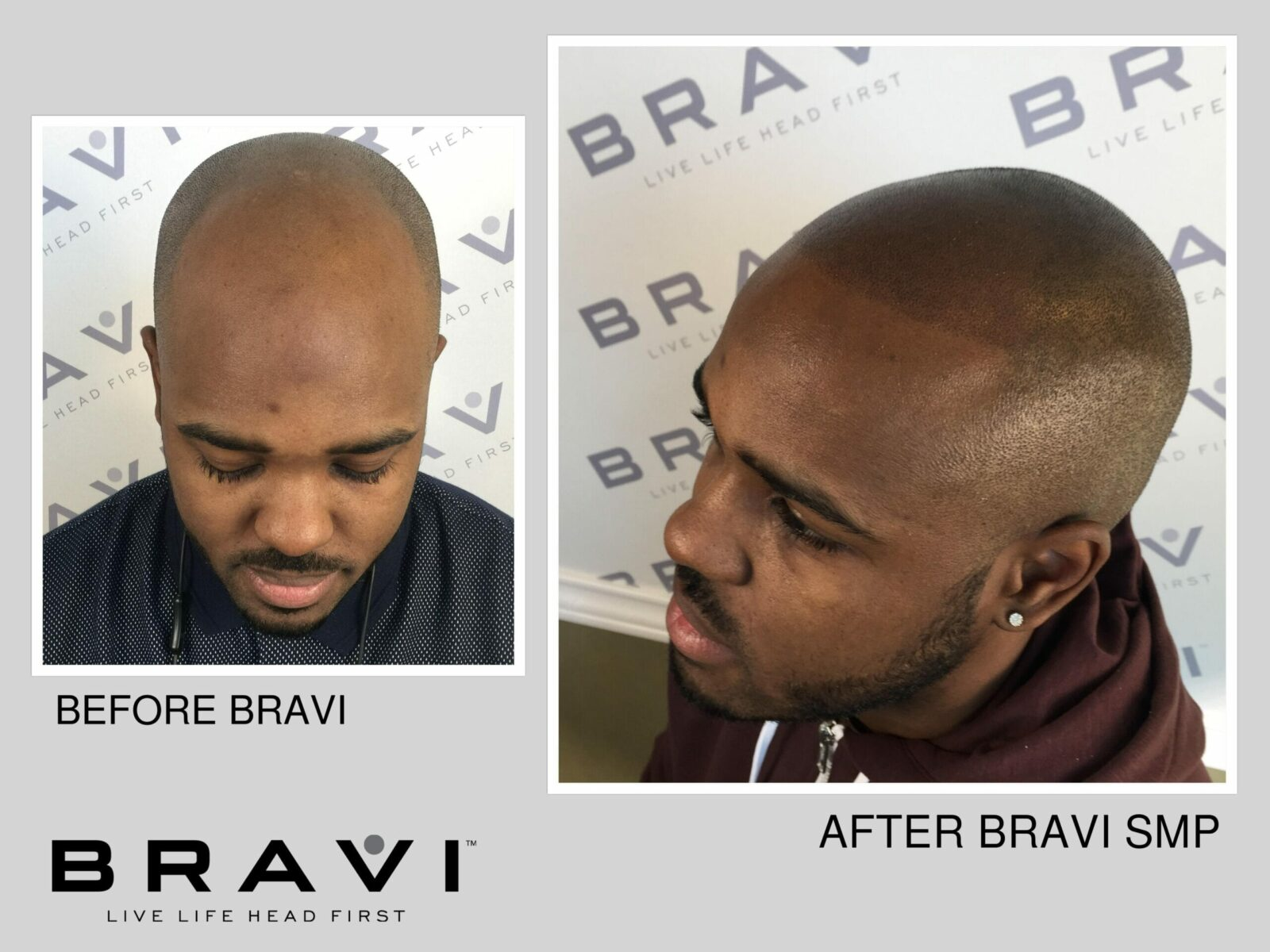 Want Great SMP Results? What Consumers Need To Know About Scalp Micro Pigmentation Training