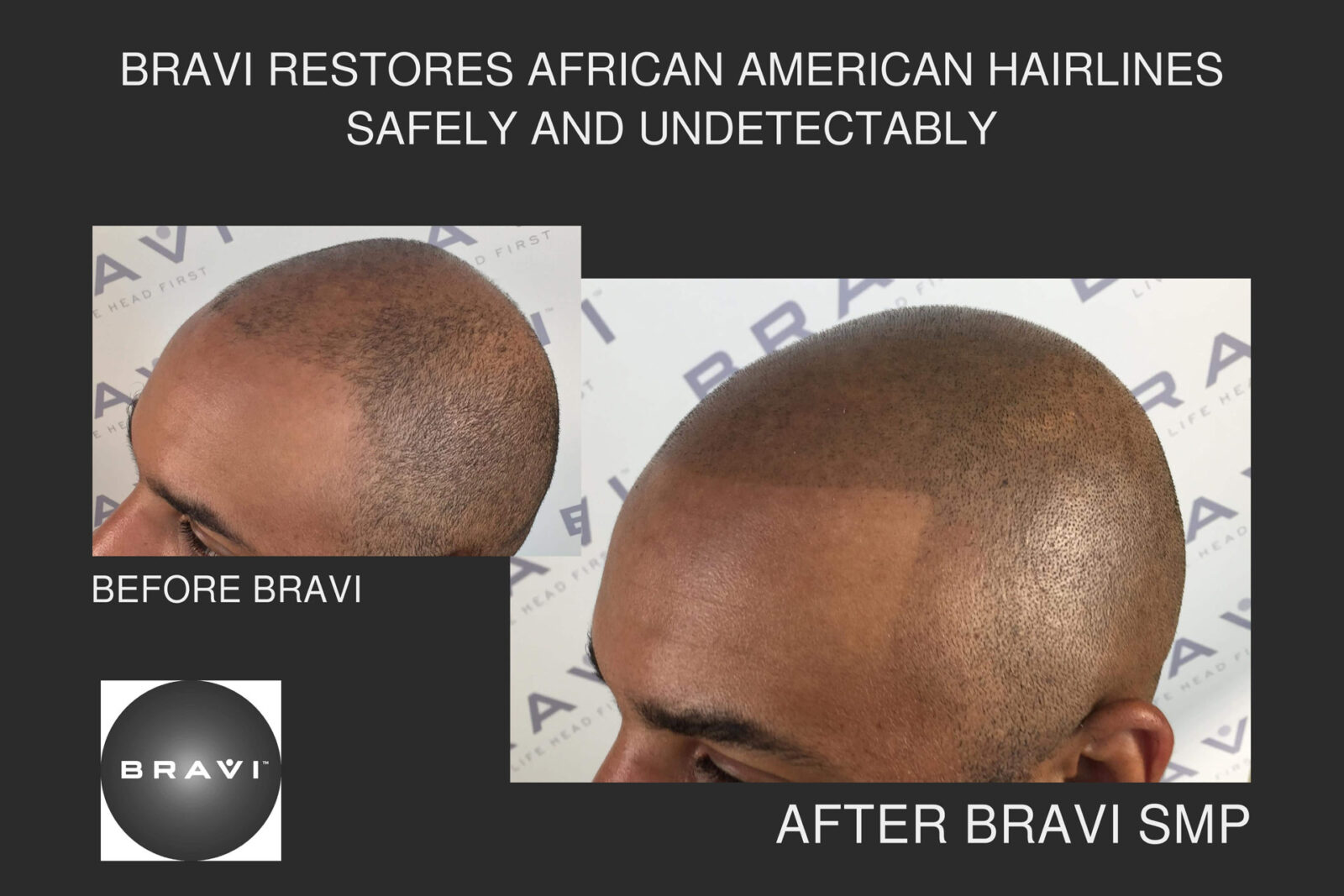 African Amercian Hairline Restoration Through Scalp MicroPigmentation (SMP)