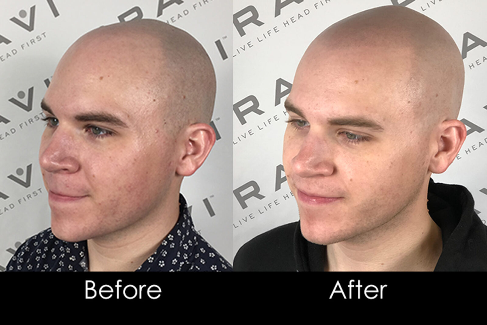John's Hair Loss Journey With Scalp MicroPigmentation