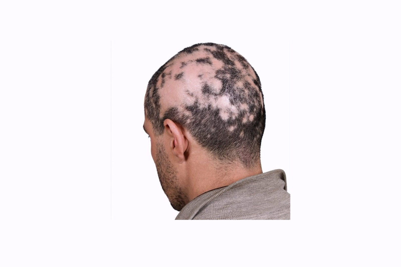 Scalp Micro Pigmentation (SMP) For The Treatment Of Alopecia
