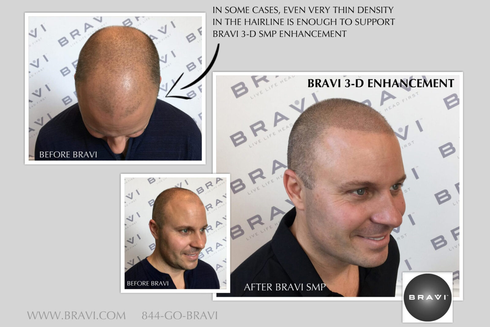 What Is 3D Enhancement For Scalp Micro Pigmentation (SMP)?