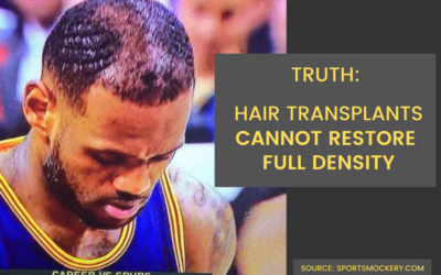 Why Lebron James Should Choose BRAVI Scalp Micropigmentation (SMP)